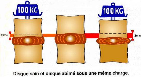 La méthode constantinien le traitement de lépine dorsale